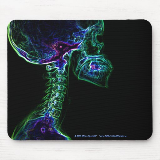 Multi-color C-spine X-ray mousepad