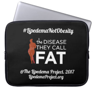 Neoprene Laptop sleeve The Disease They Call Fat