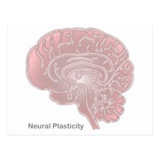 Neural Plasticity Postcard