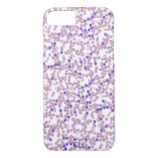 Phone case(many models)-Chronic Lymphomic Leukemia iPhone 7 Case