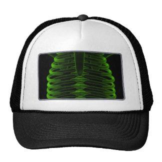 Plexus x-rays in live! hat