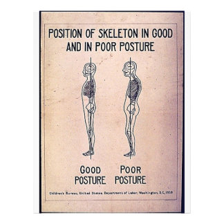 Position Of Skeleton In Good And In Poor Posture 21.5 Cm X 28 Cm Flyer