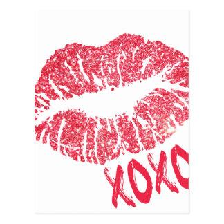 RED RETRO SUGAR LIPS XOXO POSTCARD