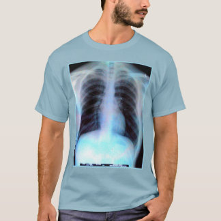 Ribcage X-ray Shirt radiology