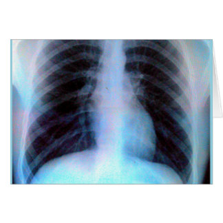 Ribcage Xray Skeleton Card