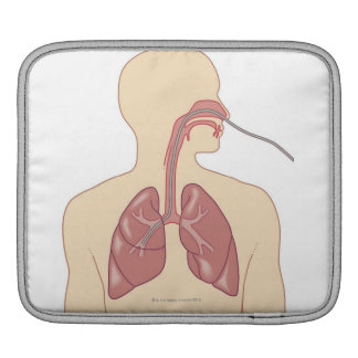 Route of Bronchoscope iPad Sleeve