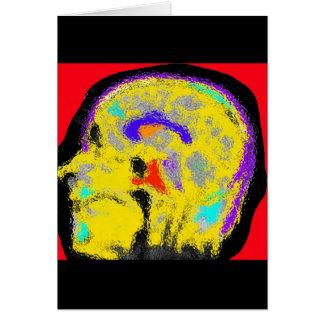 sagital MRI Card