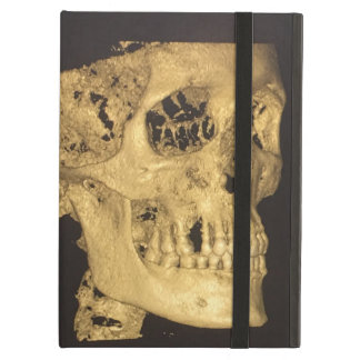 Scary Skull iPad Air Case