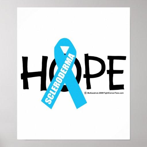 Scleroderma Hope Print