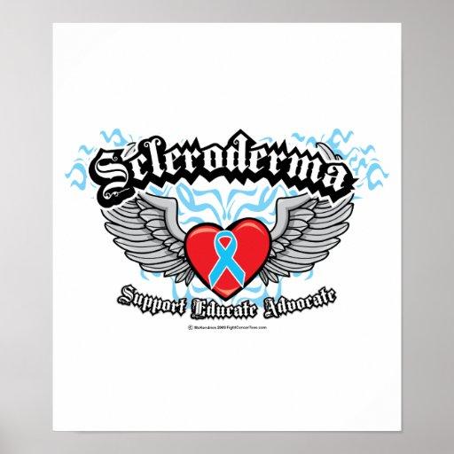 Scleroderma Wings Print