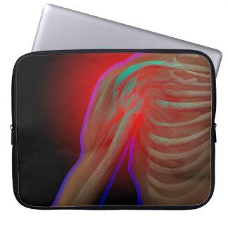 Shoulder Pain Laptop Sleeve