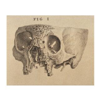Skull - Antique Medical Illustration Wood Canvases