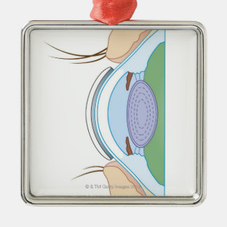 Soft Contact Lens Metal Ornament