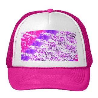Sponge Print Pink/Purple/Black Cap