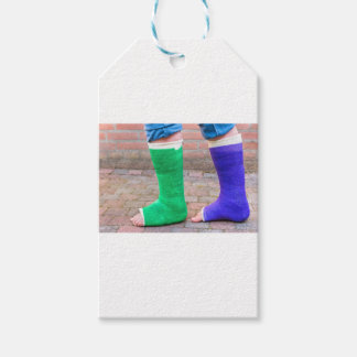 Standing child with two colorful gypsum legs