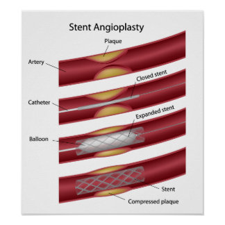 Stent angioplasty Poster
