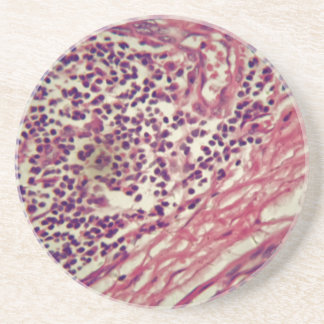 Stomach cancer cells under the microscope. coaster