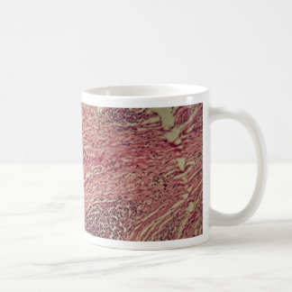 Stomach cancer cells under the microscope. coffee mug