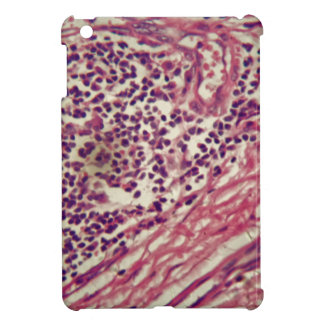 Stomach cancer cells under the microscope. iPad mini cases