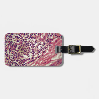 Stomach cancer cells under the microscope. luggage tag