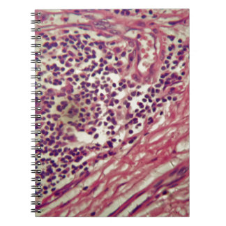 Stomach cancer cells under the microscope. notebooks
