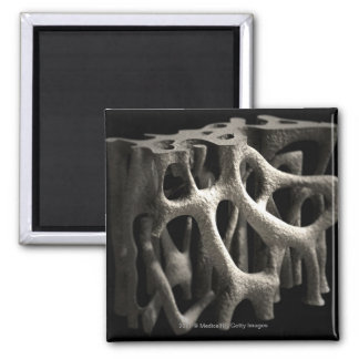 Structure of a bone with osteoporosis square magnet