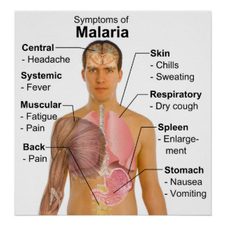 Symptoms Chart of Mosquito-Borne Malaria Disease Poster
