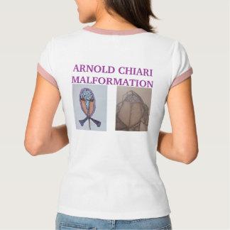 SYMPTOMS OF  ARNOLD CHIARI MALFORMATION   * Hea... T-Shirt