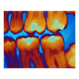Teeth with fillings green coloured X-ray Posters