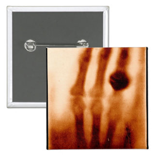 The First X-Ray, 1901, Photograph 15 Cm Square Badge