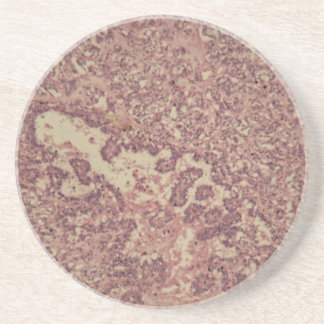 Thyroid gland cells with cancer beverage coaster