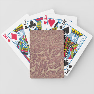 Thyroid gland cells with cancer bicycle playing cards