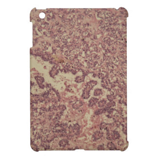 Thyroid gland cells with cancer iPad mini cases