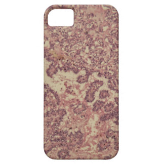 Thyroid gland cells with cancer iPhone 5 case