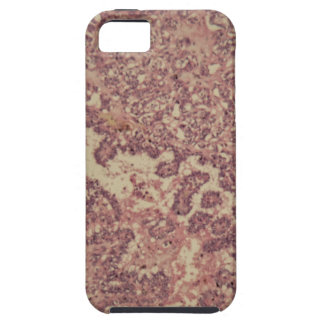 Thyroid gland cells with cancer iPhone 5 cover