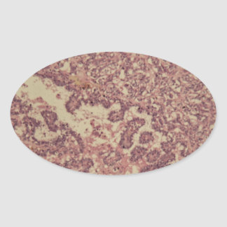 Thyroid gland cells with cancer oval sticker