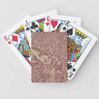 Thyroid gland cells with cancer poker deck