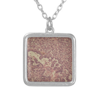 Thyroid gland cells with cancer silver plated necklace