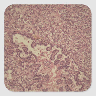 Thyroid gland cells with cancer square sticker