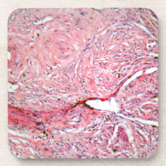 Tissue cells from a human cervix with cancer coaster