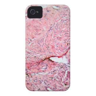 Tissue cells from a human cervix with cancer iPhone 4 Case-Mate case