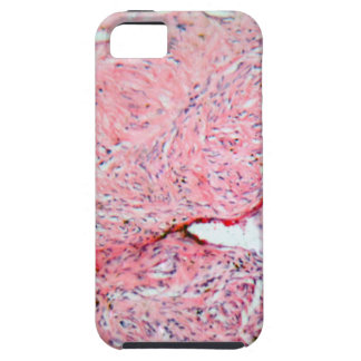 Tissue cells from a human cervix with cancer tough iPhone 5 case