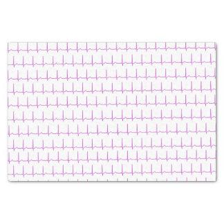 Tissue paper - Normal Sinus Rhythm (EKG)