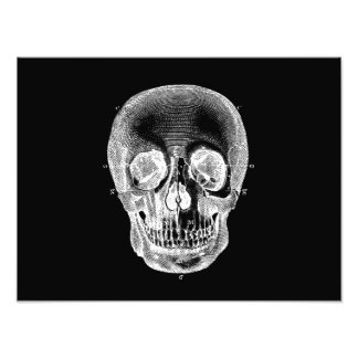 Vintage 1800s Skull Retro Anatomical Black White Photographic Print
