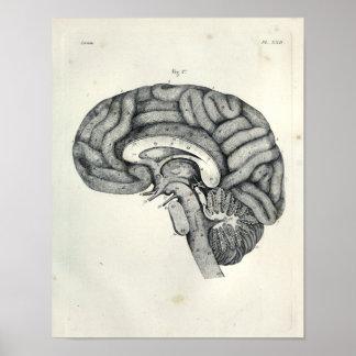 Vintage 1805 Anatomical Brain Median Surface Print