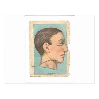 Vintage Anatomy Photo Head Postcard
