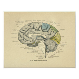 Vintage Frohse Anatomical Brain Median Surface Poster