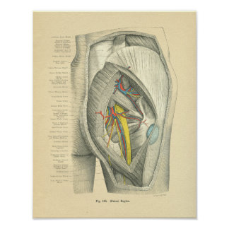Vintage Frohse Anatomy of Hip & Leg Poster