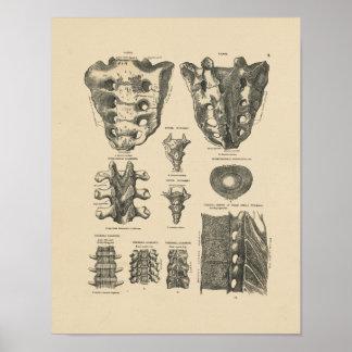 Vintage Spinal Bones 1880 Print