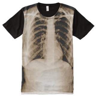 X-Ray All-Over Print T-Shirt